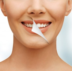 tratamentos_clareamento_dental