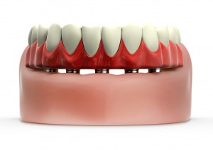 tratamentos_implantodontia_protocolo_02