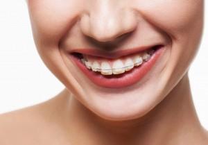 tratamentos_ortodontia