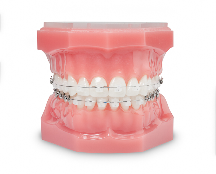 tratamentos_ortodontia_aparelho_autoligavel