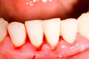tratamentos_periodontia_gengivite
