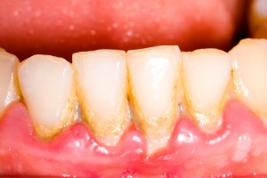 tratamentos_periodontia_periodontite