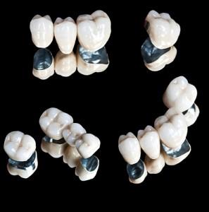 tratamentos_protese_metaloceramica_02